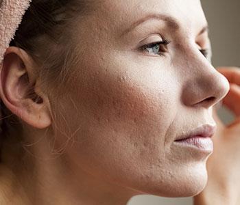 akne ärr behandling