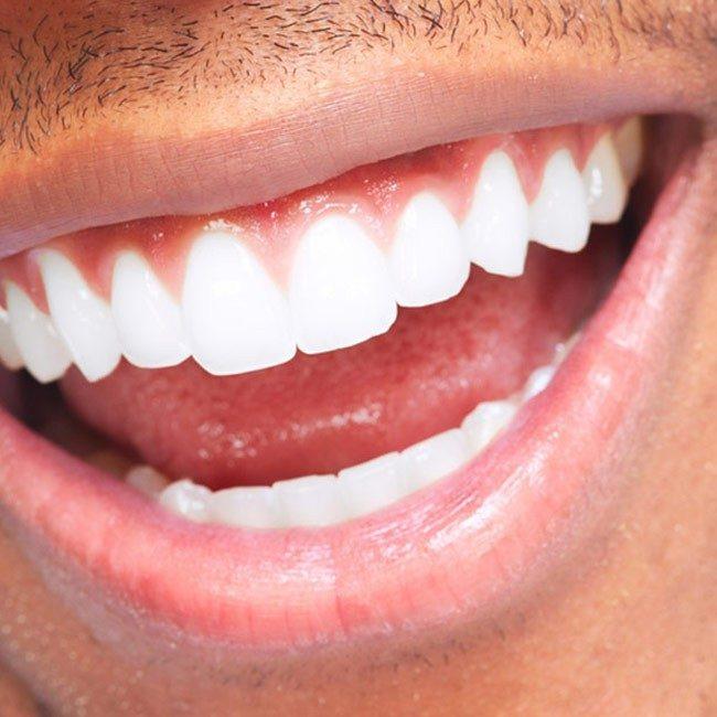 Vilken är bästa tandblekningen?