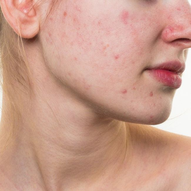 Vad är rosacea och vilka rosacea behandlingar finns det?
