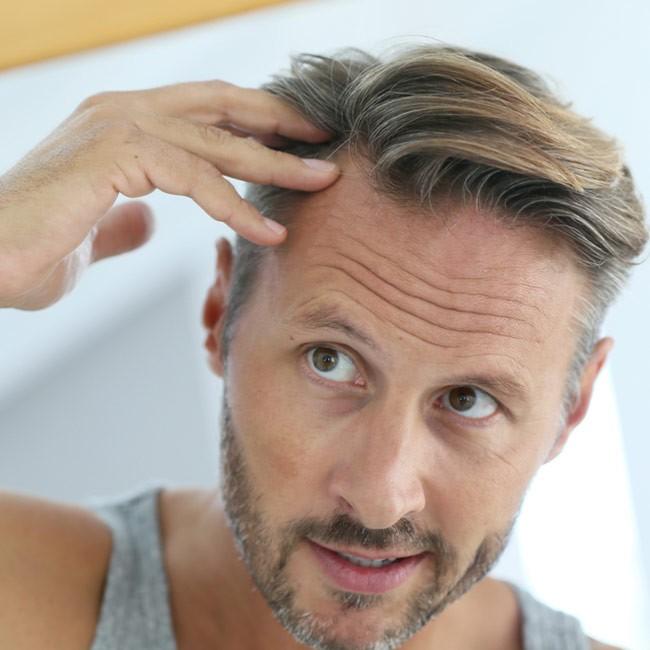 Håravfall behandling: Medel mot håravfall för män och kvinnor