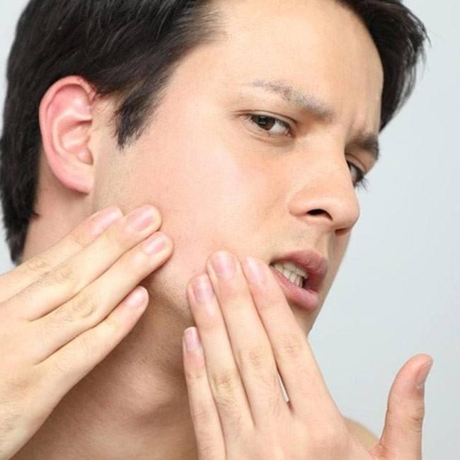 Behandling mot vårtor i ansiktet