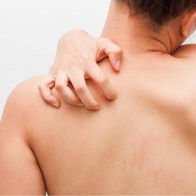 Har du drabbats av en hudinfektion?