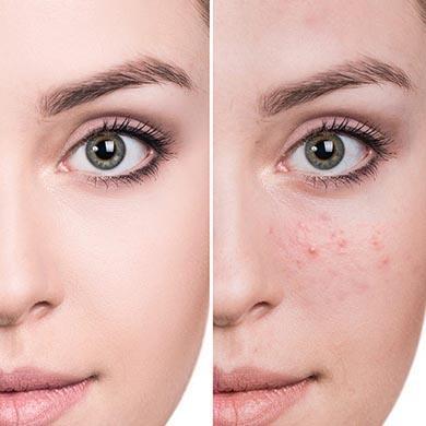 Varför får du akne och vilken akne behandling passar bäst?