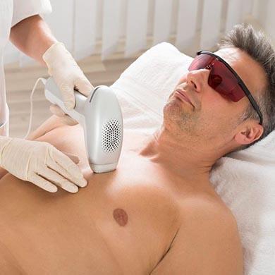 Hårborttagning Laser