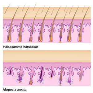 Hairmax laserband